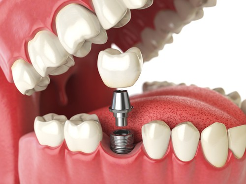 Dental Implants Sutherland