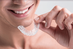 Mouthguard-For-Teeth-Grinding