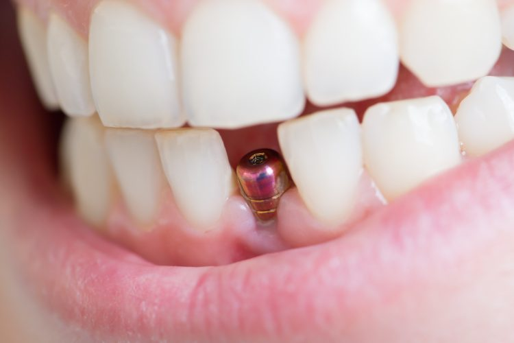 Dental implant to replace missing tooth