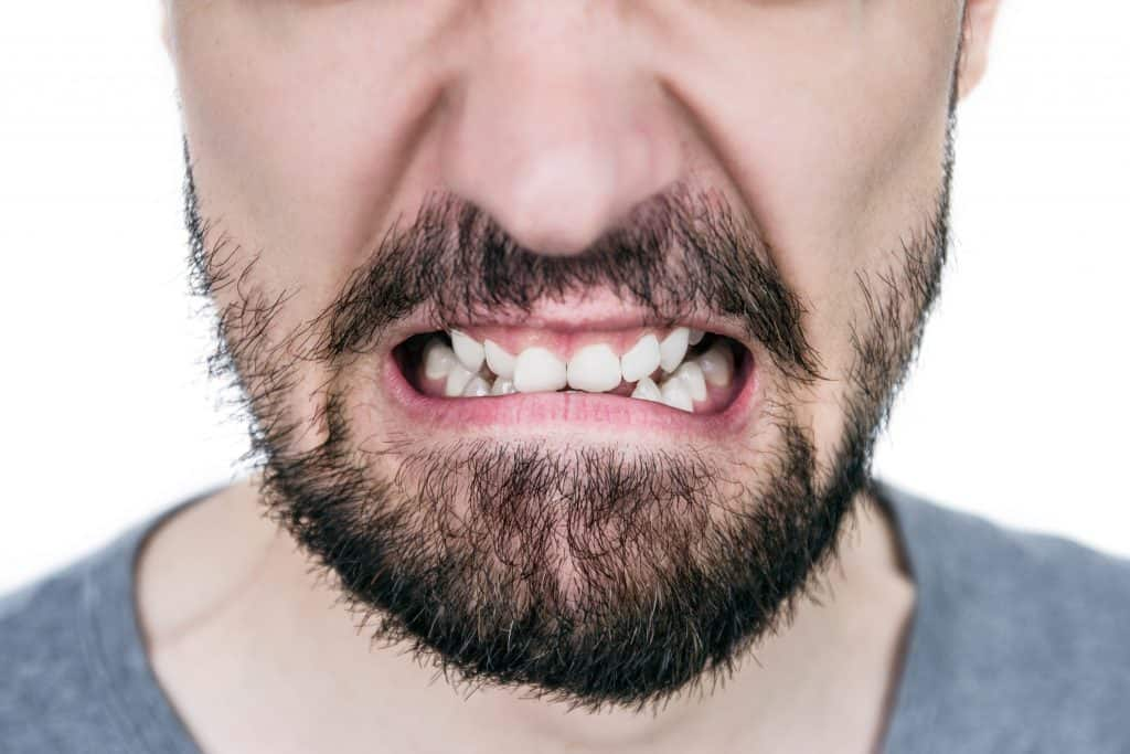 patient-with-crooked-teeth-due-to-teeth-grinding