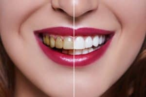 Cleaning-discolouration-through-teeth-whitening