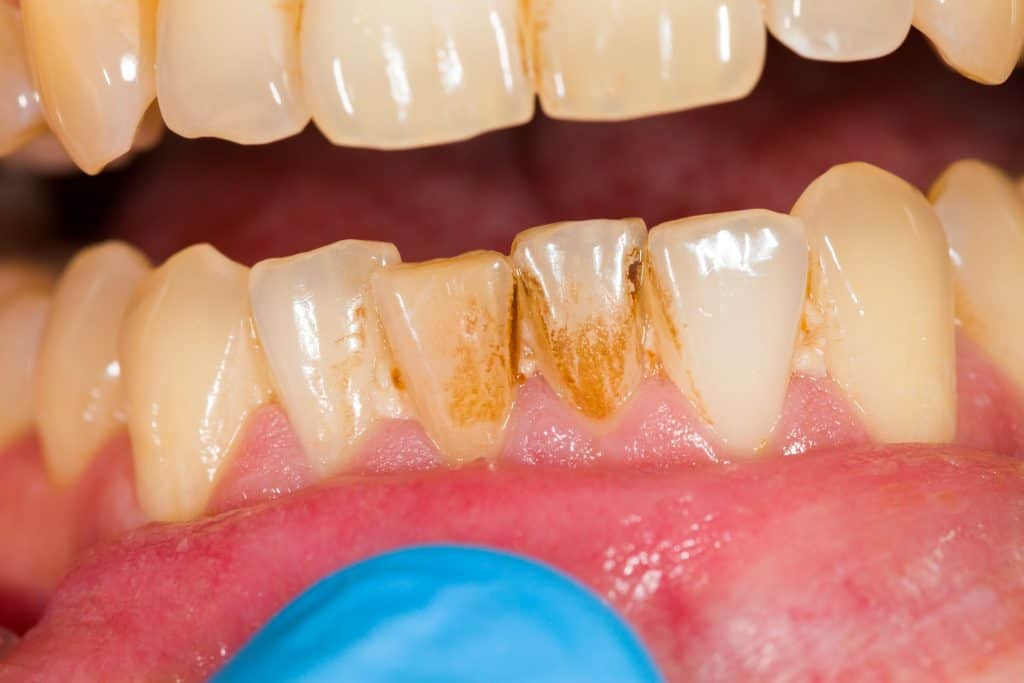 signs of plaque and tartar